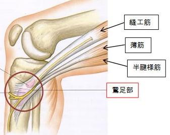 膝の痛み,内側,原因