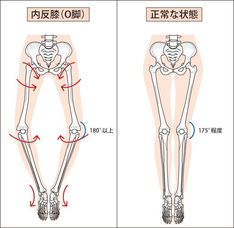 膝の痛み,o脚,大阪